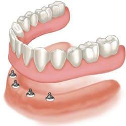 Snap on 4 bottom denture