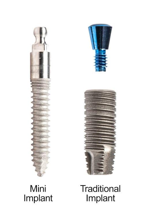 mini vs traditional dental implant