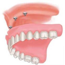 snap on 4 top denture