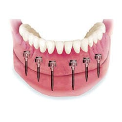 snap on 6 bottom denture