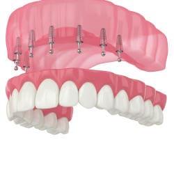 snap on 8 top denture