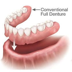 snap on comparison - conventional denture