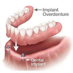 snap on comparison - snap on 2 bottom denture