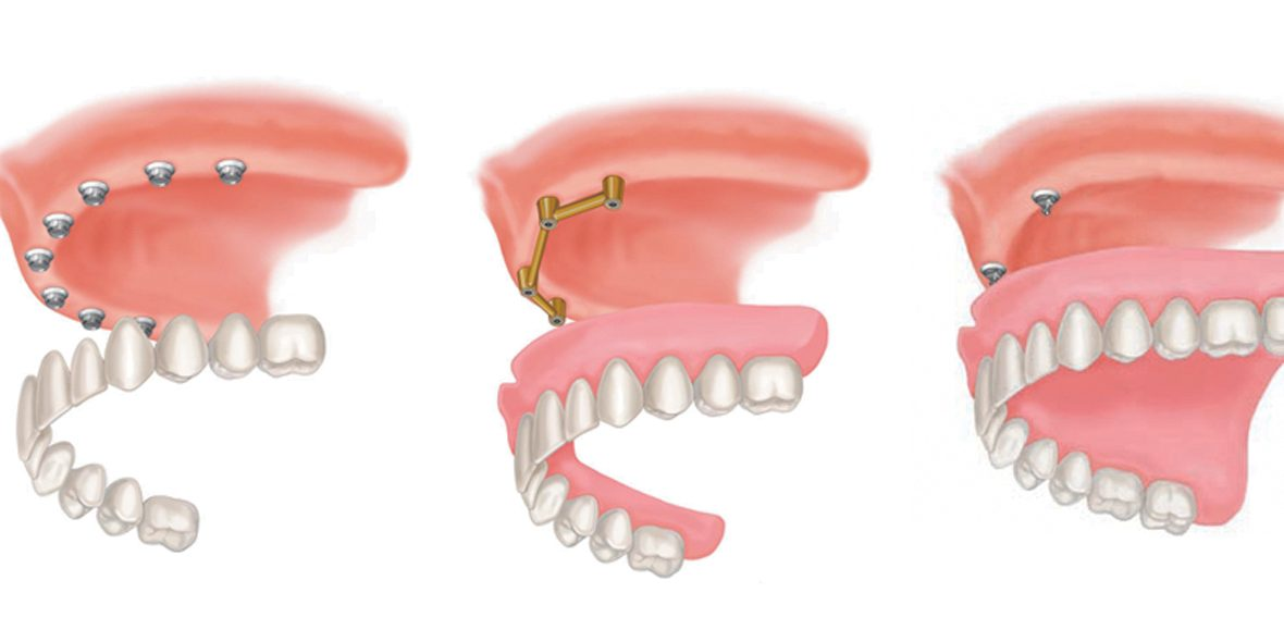 Dentures, Different thicknesses of artificial gums, Three Styles