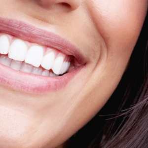 Teeth Whitening in Davis County