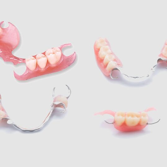 Four Different Examples and Sizes of Partial Removable Dentures from Three teeth to six teeth